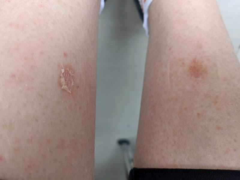 manuka honey and wound healing