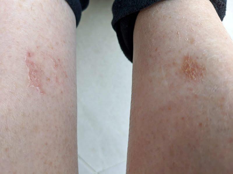 manuka honey and wounds