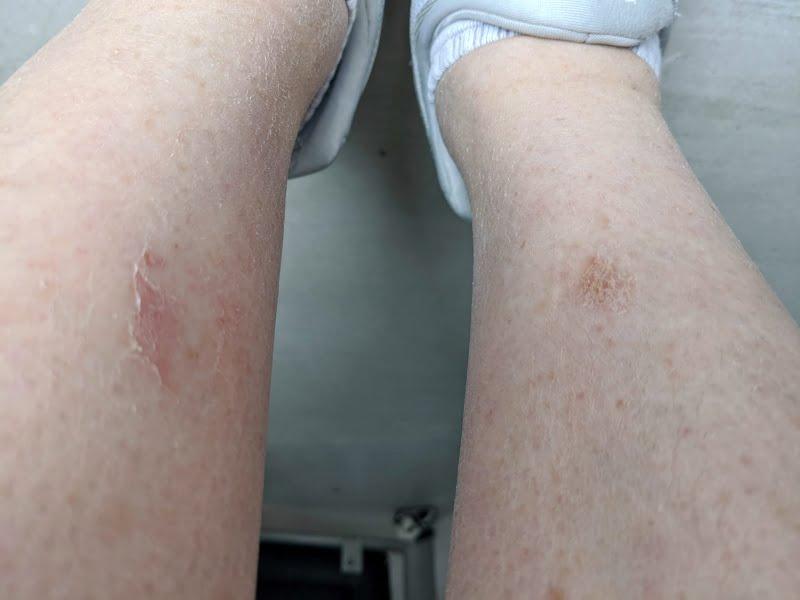 manuka honey for skin healing