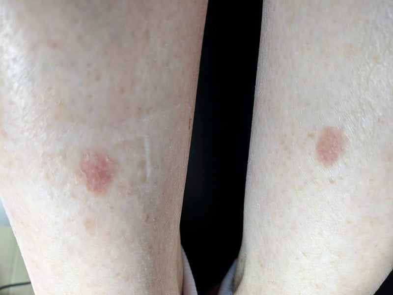 manuka honey wound healing