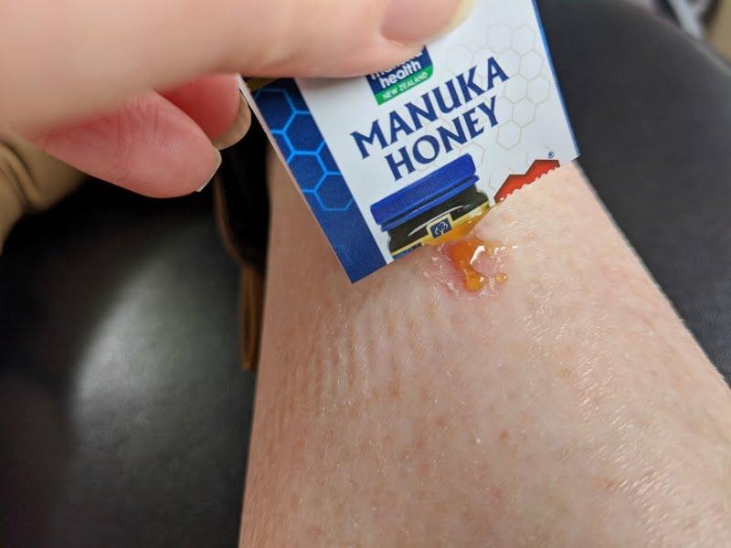 manuka to heal a wound
