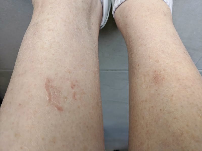 using manuka honey on wounds